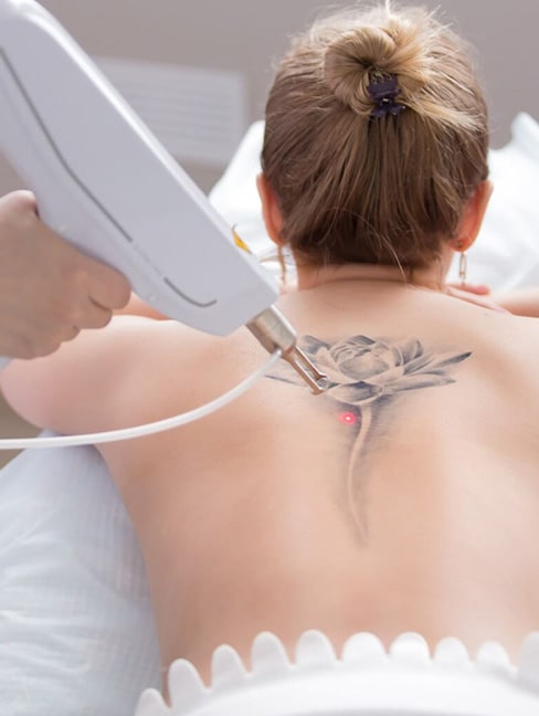 What are the uses for laser tattoo removal