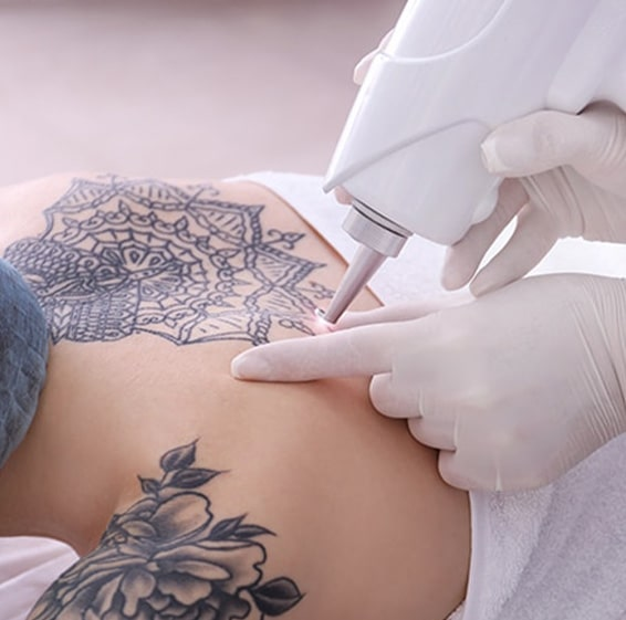cost of laser Tattoo Removal richmond hill