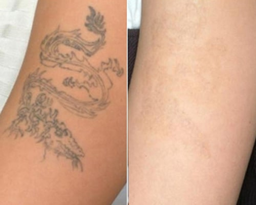 Tattoo Removal richmond hill before and after