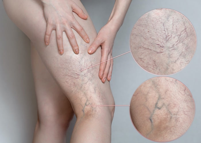 What should I expect after Vascular Varicose Veins