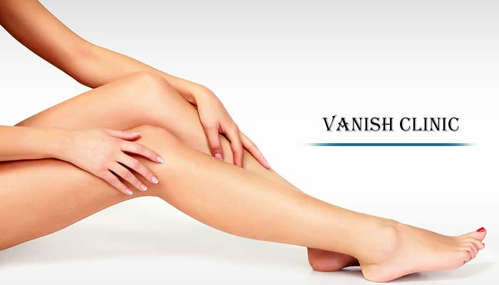 best hair removal clinic richmond hill
