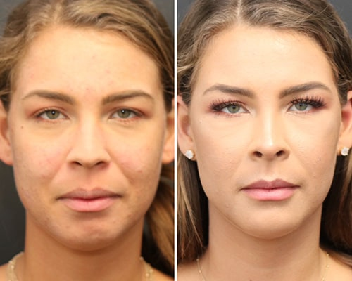 dermal filler before and after vaughan