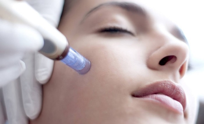 during mesotherapy