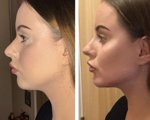 face filler before and after