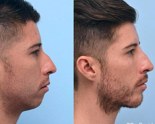 filler for chin before after