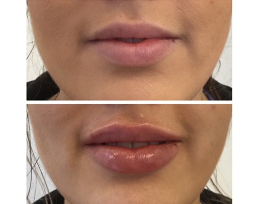 lip filler before and after Richmond hill