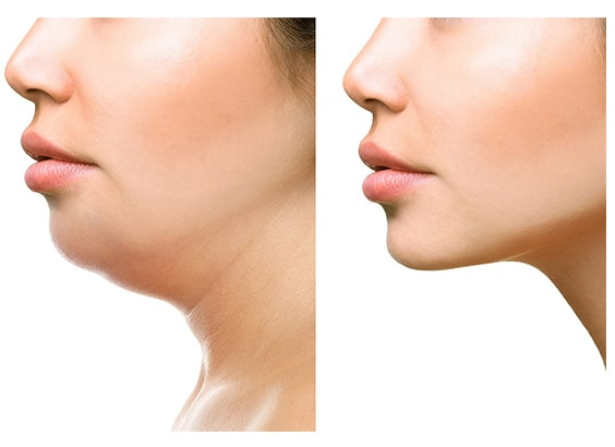 chin filler injection